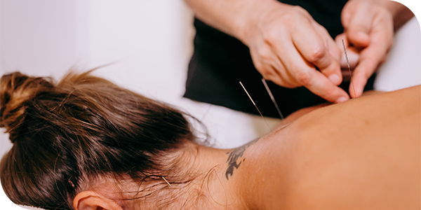dmtreatments-Acupuncture